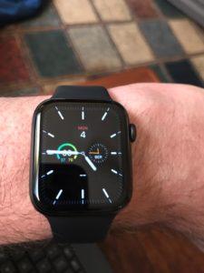 Die Apple Watch als modernes Halsband.